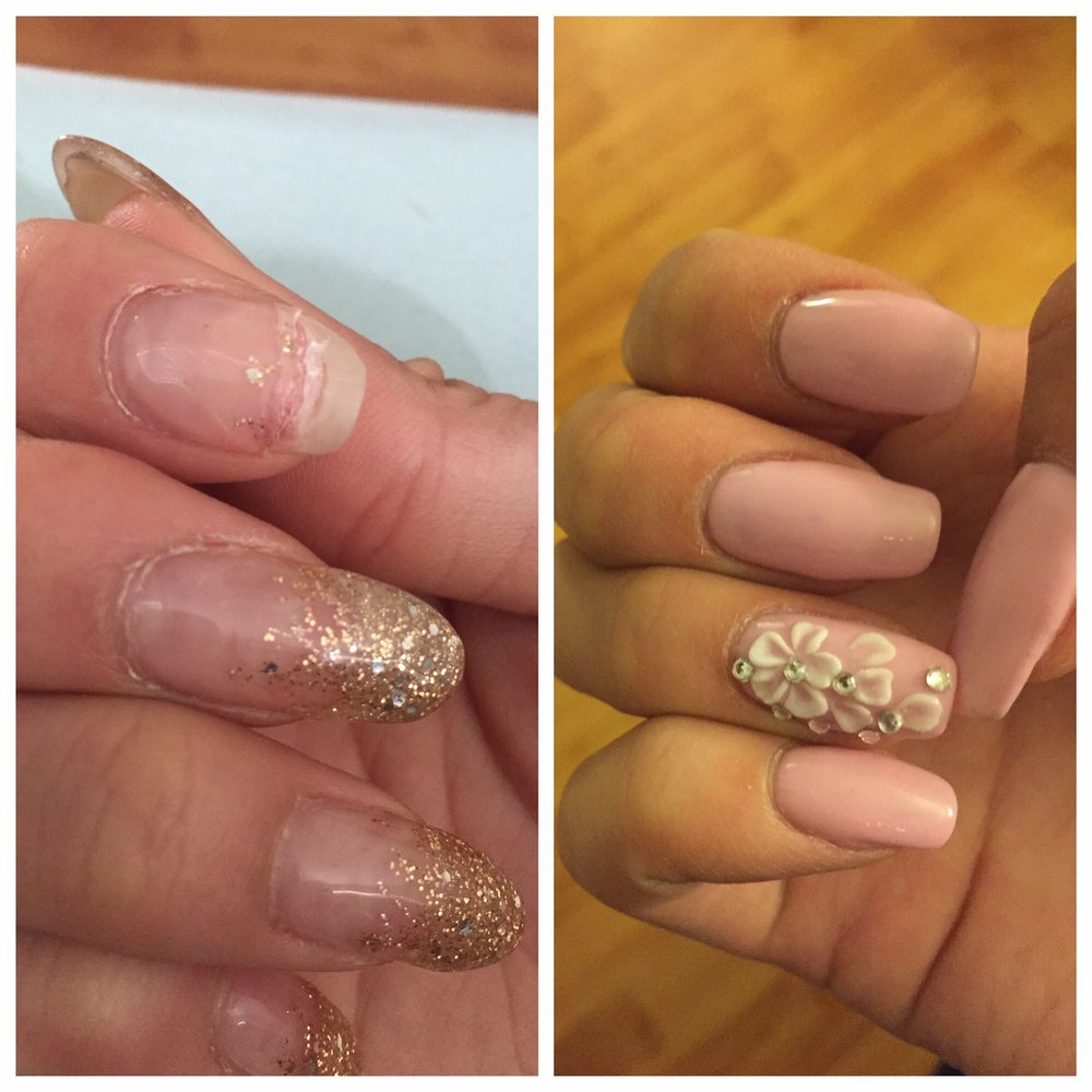 Before and After--Thank you Lindsey for patching up my broken and ...