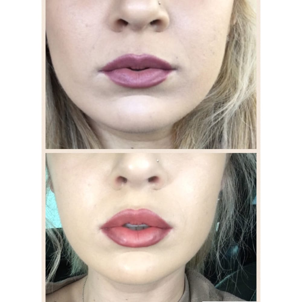 Cosmetic Injectables By Lisa