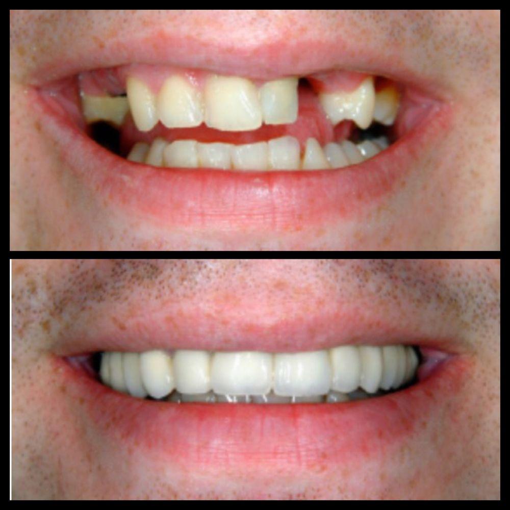 Dental Creations 11 Foto Dentisti 8190 S Memorial Dr