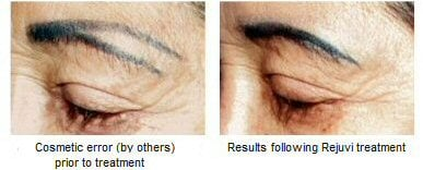 Rejuvi Tattoo Removal Method is PERFECT for Permanent Makeup Repair ...