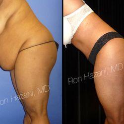 Hazani Plastic Surgery - 130 Photos & 28 Reviews - Plastic
