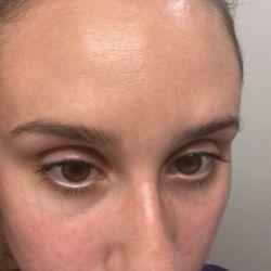 Acne facial seattle