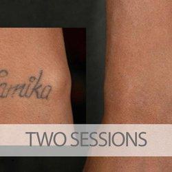 Eraditatt Tattoo Removal Of Tampa Tattoo Removal 1715 N