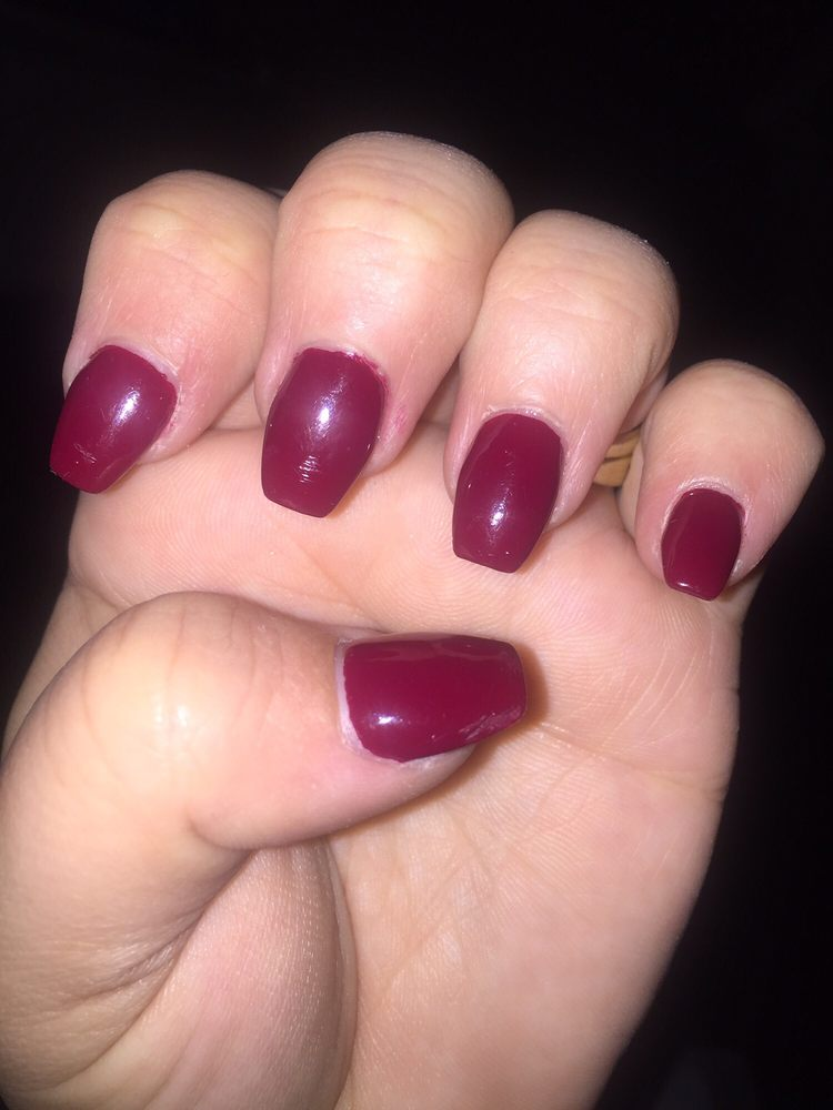 All of my nails are dinged up like this from being told they were ...