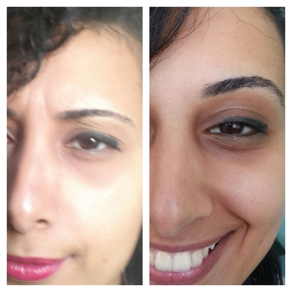 lip threading before and after   Julakutuhy co