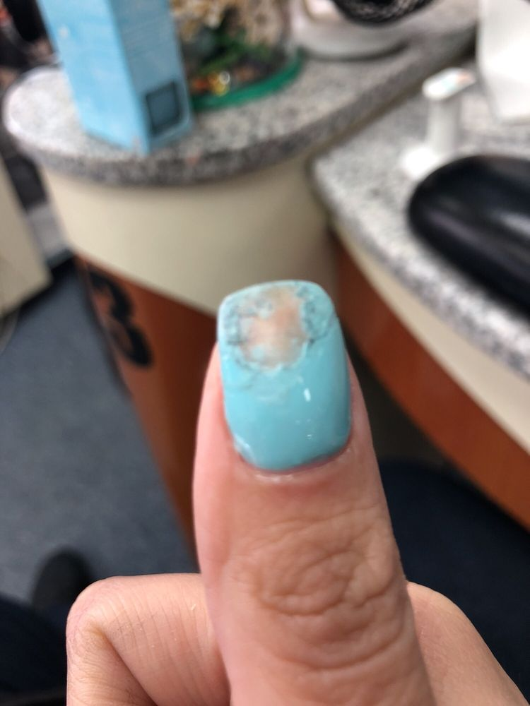 No chip nail. Lol - Yelp