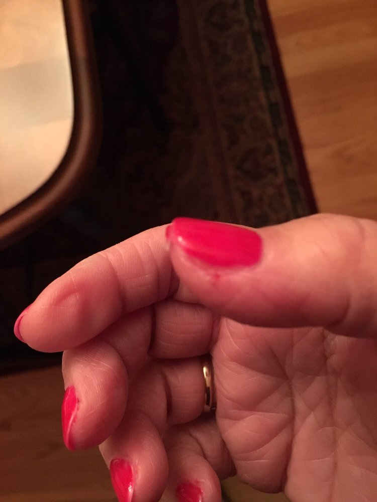 Skin clipped! Ouch! - Yelp