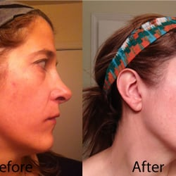 A Beautiful You - Laser Hair Removal - 25 E Washington, The