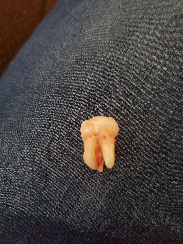Placentia Oral Surgery