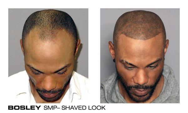 Bosley Hair Restoration 5215 N Sabino Canyon Rd Tucson Az Hair