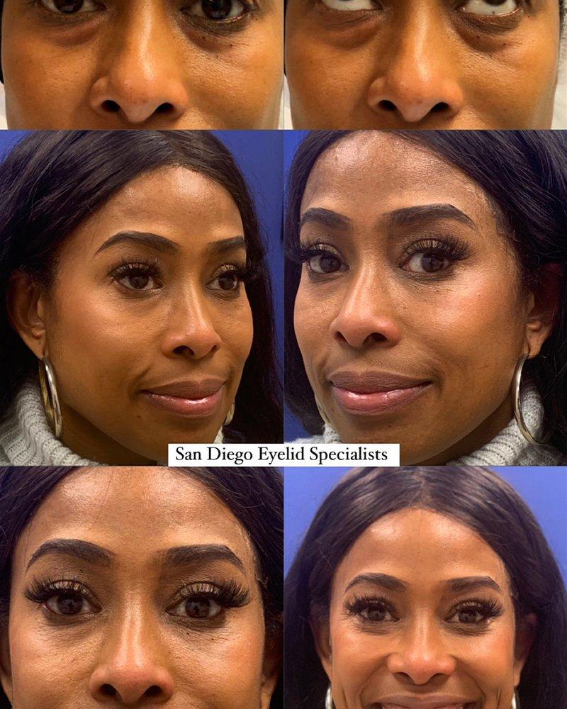 San Diego Eyelid Specialists
