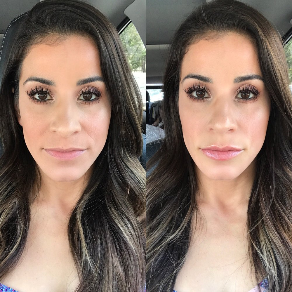 Before And After Lips – Daily Motivational Quotes