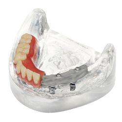 AvaDent Digital Dentures - General Dentistry - 15730 N 83rd