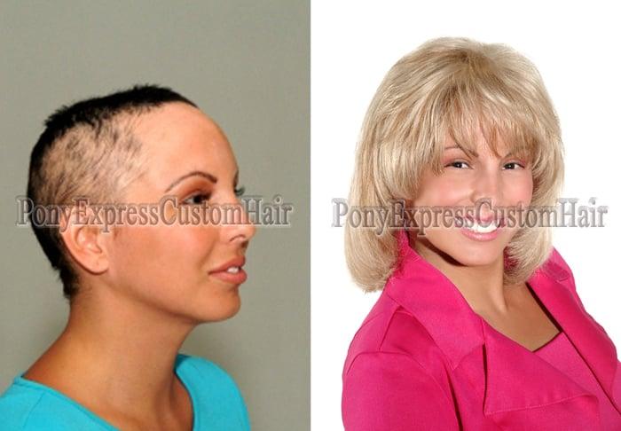 Albuquerque Hair Extensions Hair Replacement Salon Yelp