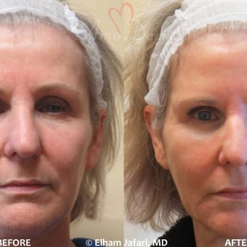 Non-surgical eyebrow & face lift, treatment of saggy jowls