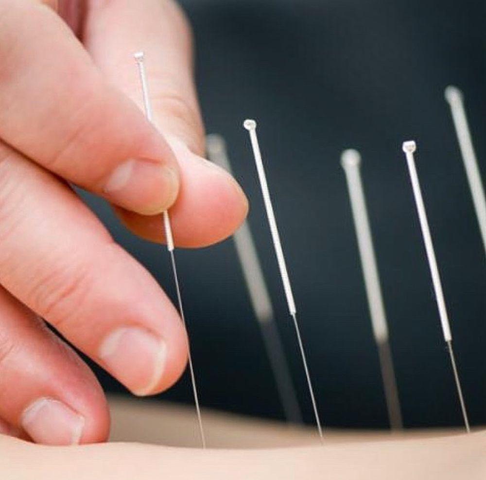 Restorative Acupuncture