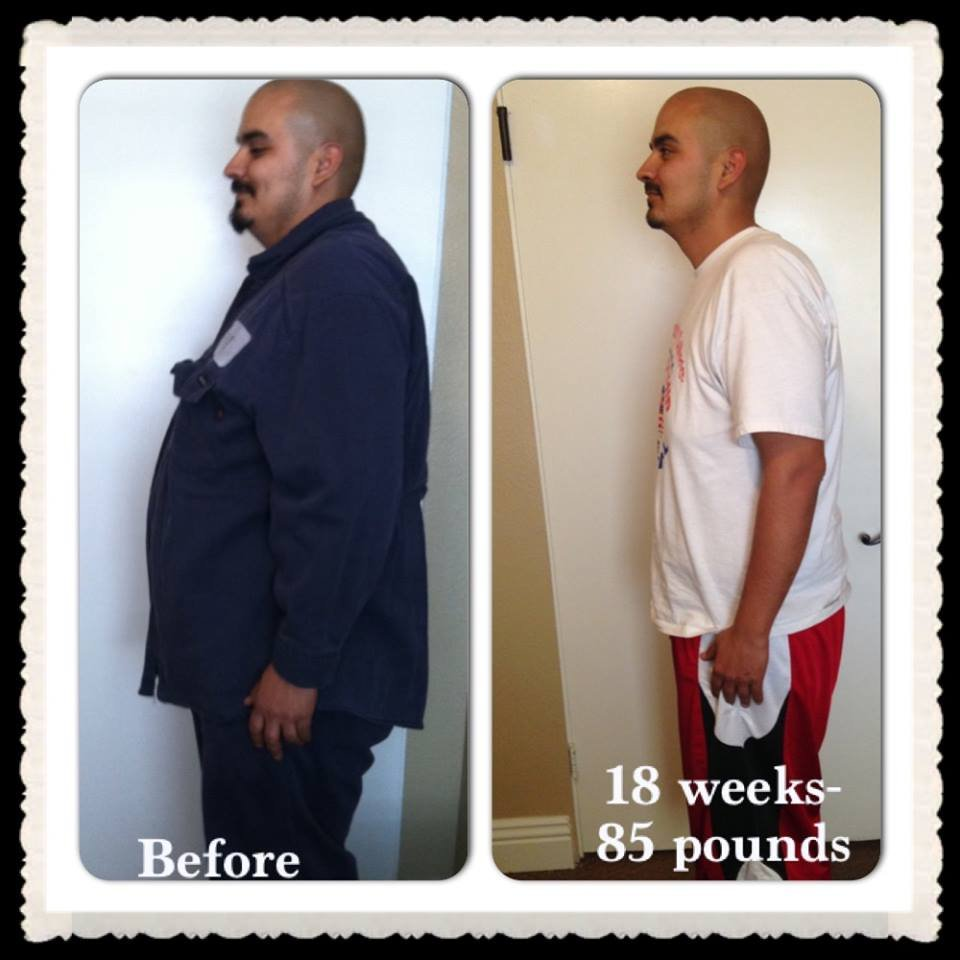 RCMC Medical Weight Loss Beaumont: 300 S Highland Springs Ave, Banning, CA