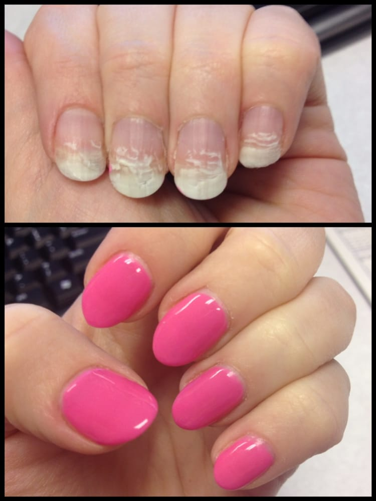 Pink Gel Manicure done by Holly. My nails went from damaged to ...