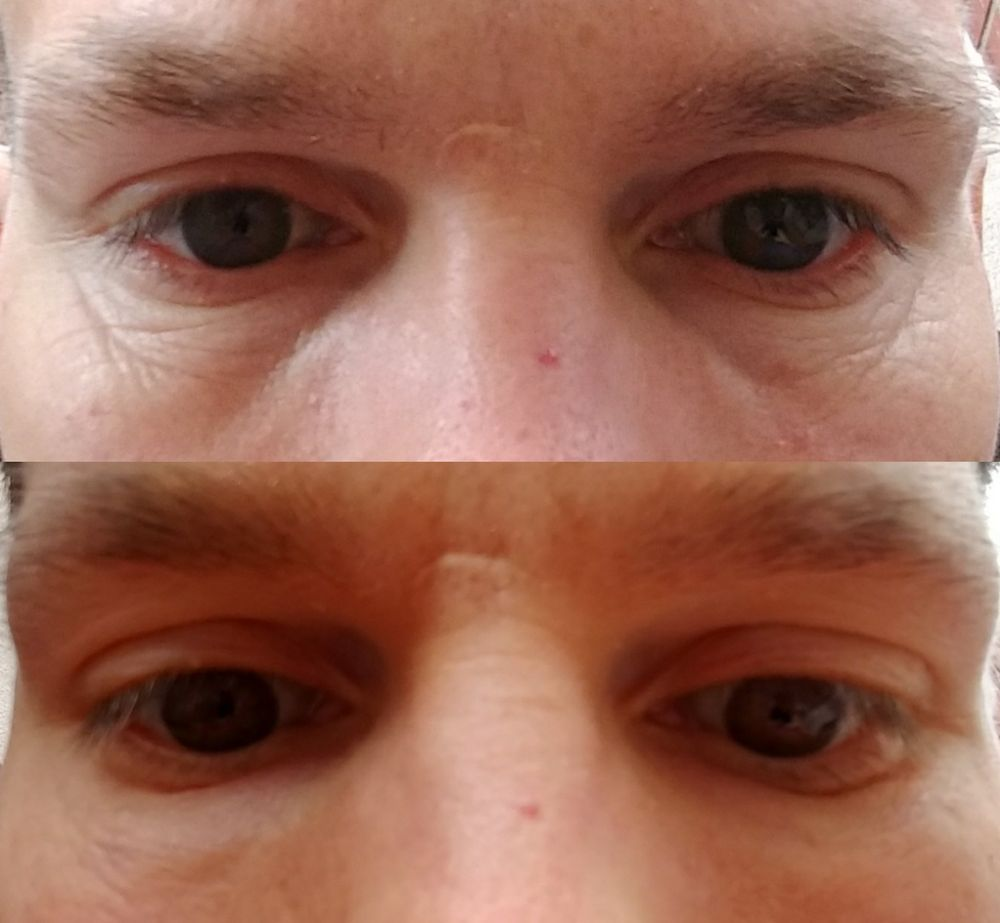Before & After Restylane, in combination with Botox and