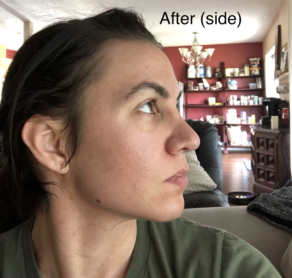 Wide nose post rhinoplasty, looks swollen but I'm 2 years post op
