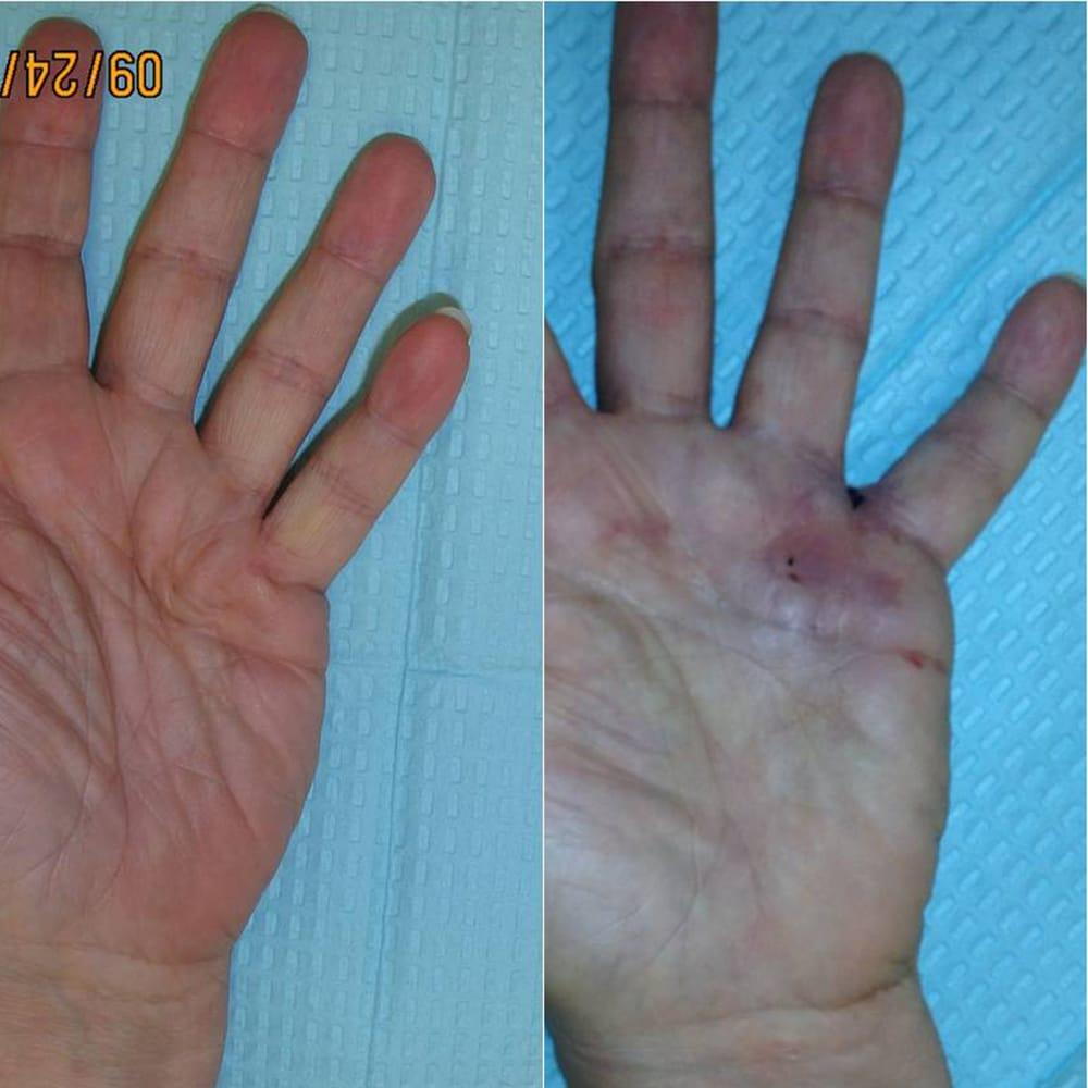 Mytien Goldberg, MD - Beverly Hills, CA, United States. Xiaflex injections for Dupuytren's contracture