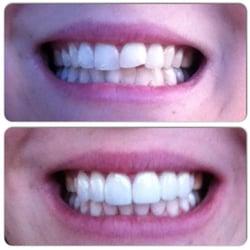 Lasting Impressions Dental Spa Encino Ca
