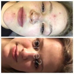 Got Acne - 32 Photos - Acne Treatment - 4159 W Lake Houston Pkwy