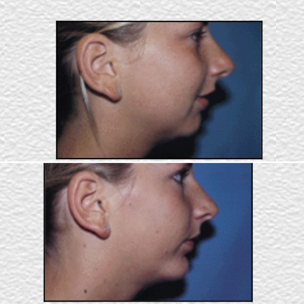 chin definition with a chin implant - yelp