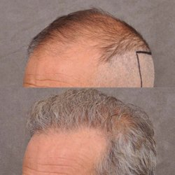 Beverly Hills Hair Group 26 Photos 20 Reviews Hair Loss
