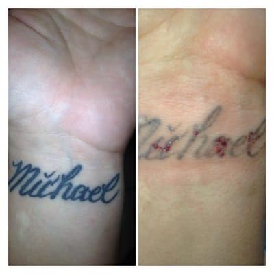 Vanishing Point Laser Tattoo Removal [8201 - 8201] Olive Blvd Saint ...