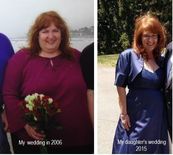 hypnosis for weight loss springfield ma