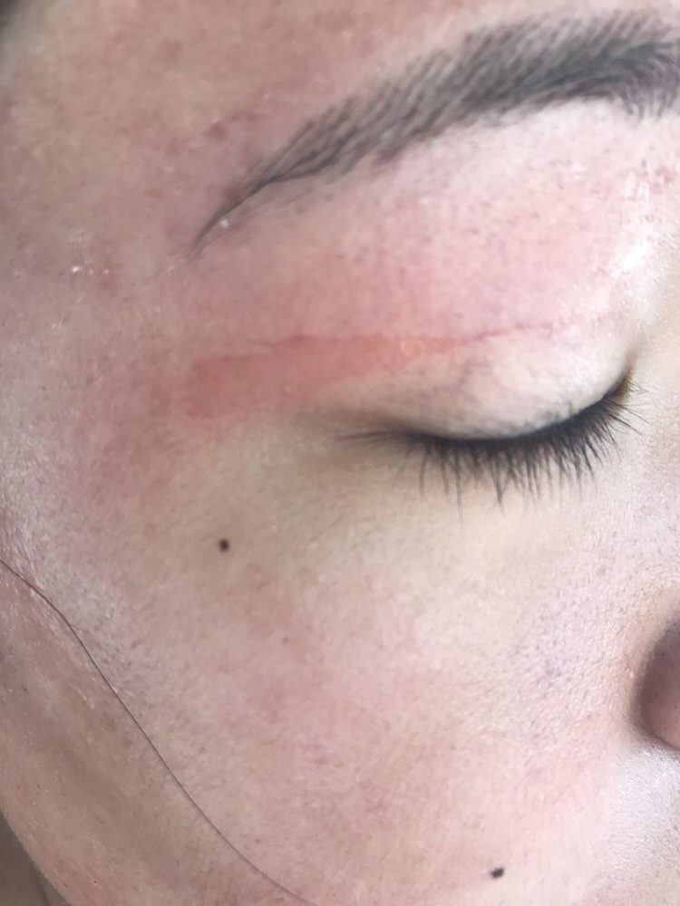 Skin Got Ripped Off While My Friend Was Getting Her Eyebrows Waxed