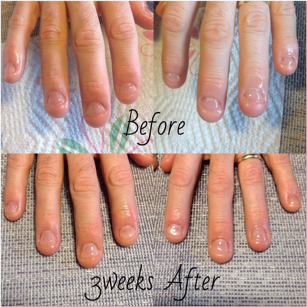 Stop biting nails progress! Gel nails totally work!!! - Yelp