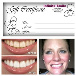 Photo Of Infinite Smile Cosmetic Teeth Whitening San Go Ca United States