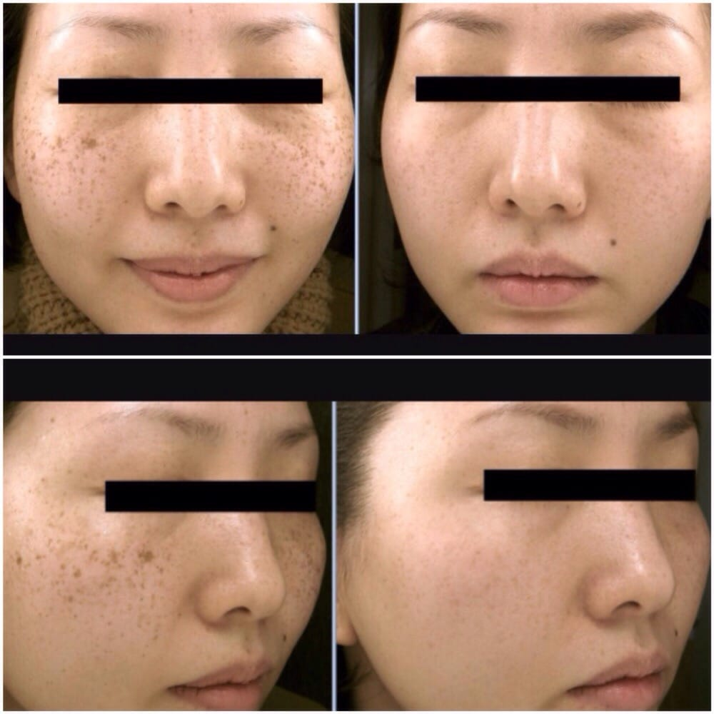 IPL/PhotoFacial treatments- get rid of sun damage, freckles and dark