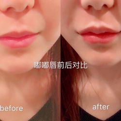 Congratulate, what Facial medicine stores in 91801
