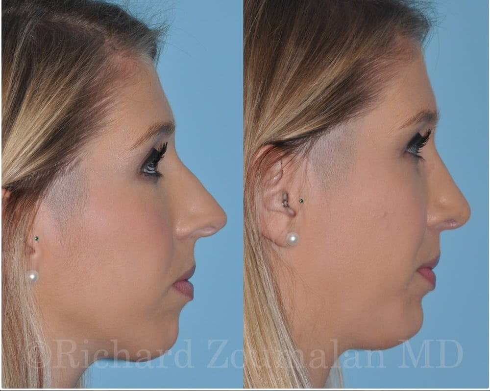 Whom can california facial plastic surgeon authoritative