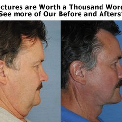 Remarkable, the plastic surgery facial scars final