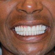 dr golpa dental implants Golpa Dental Implants - 376 Photos