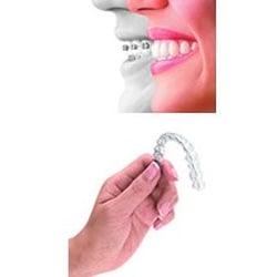 Ormco - Orthodontics Supply Company   Brackets, Wires ...