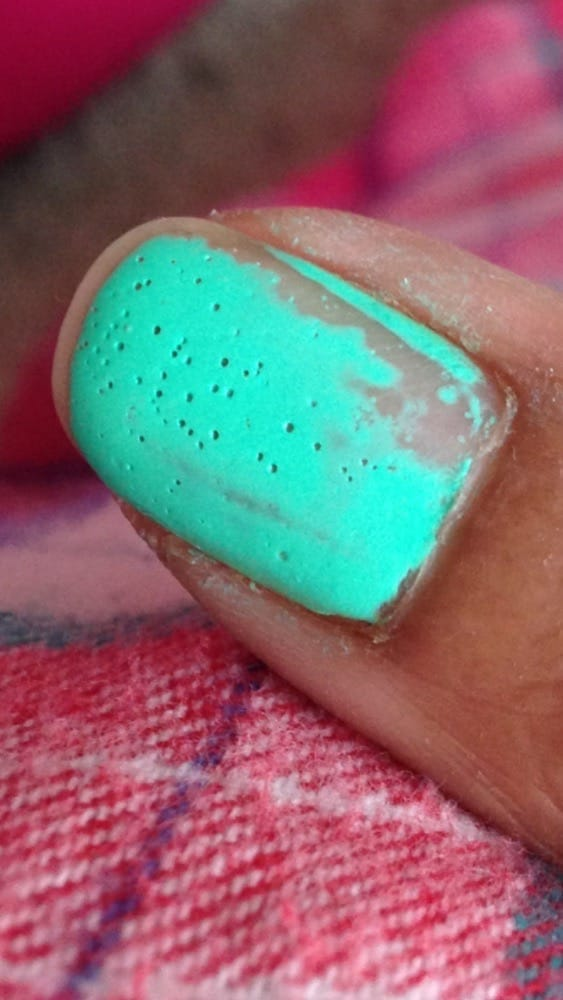 Nail polish had holes the next day, used a remover and this is how ...
