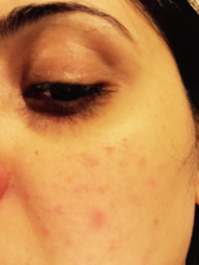 Allergic reaction due to Facial - Yelp