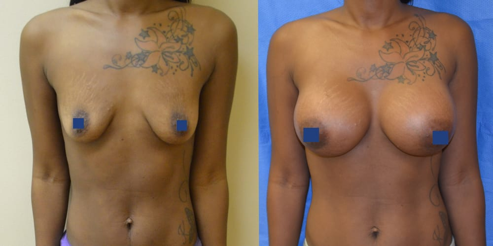 After breast breast feeding image