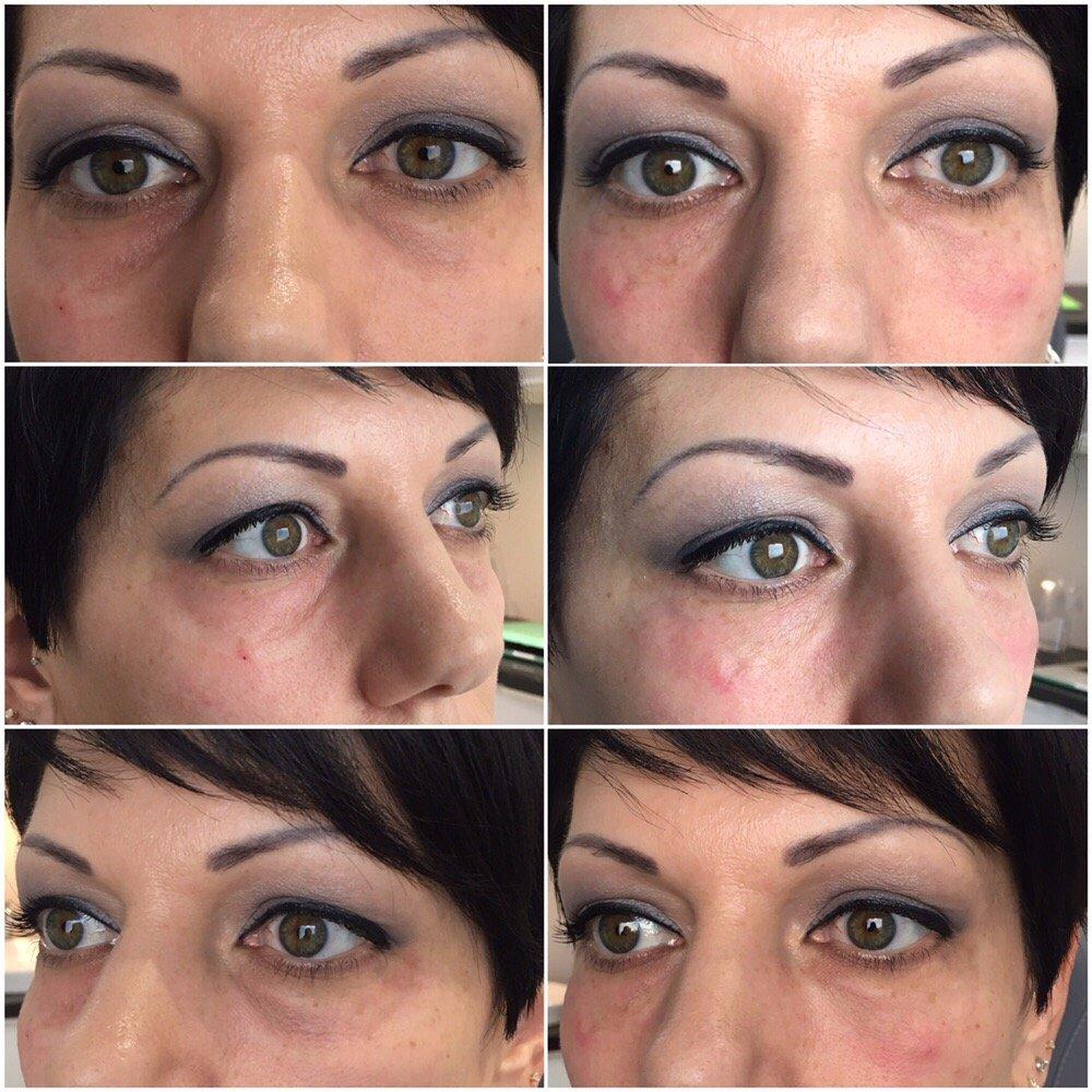 Tear trough filler for dark circles under eyes - Yelp