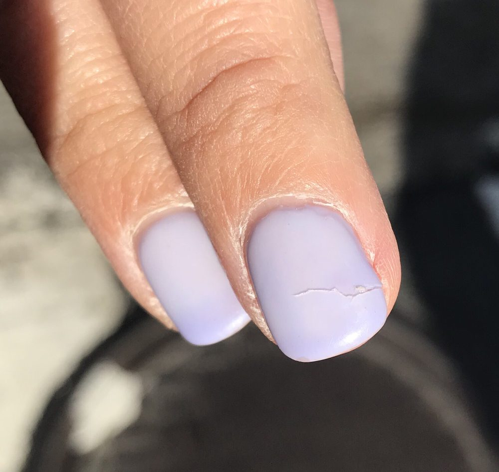 fixed crack nail last week - cracked again. Said told me it won\'t ...