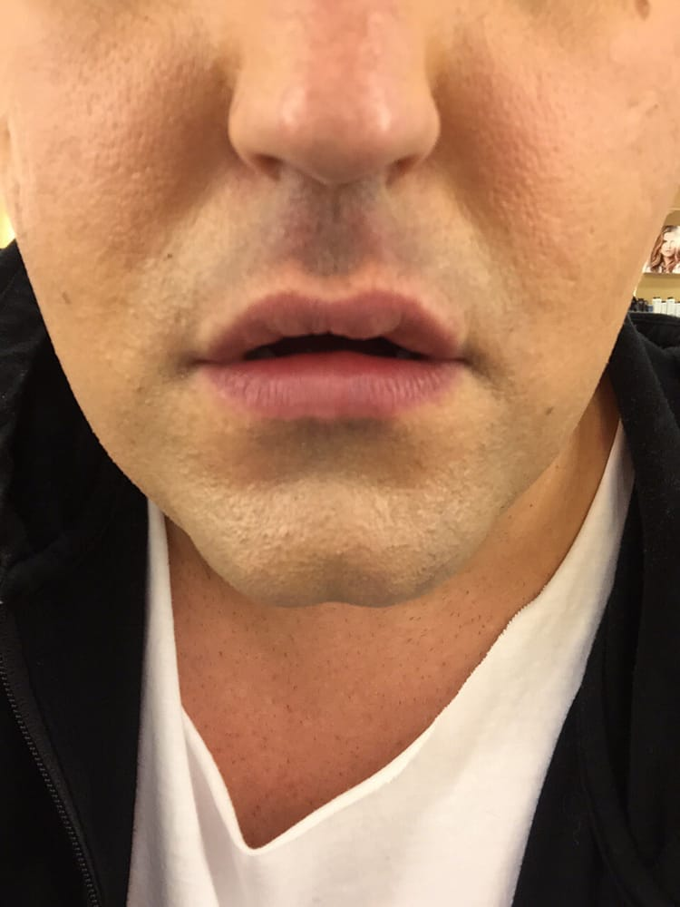 Top lip center  Large uneven bump from juvederm - Yelp
