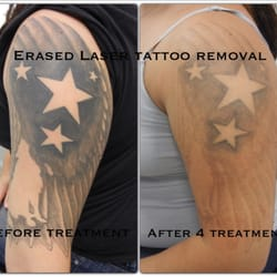 PHAZE Laser Tattoo Removal Brings Trinity Multicolored Laser besides Reset Tattoo Removal   85 Photos   45 Reviews   Tattoo Removal together with LAS VEGAS TATTOO REMOVAL    SKIN DESIGN TATTOO together with Laser Tattoo Removal in Las Vegas   Original You likewise Erased Laser Tattoo Removal   63 Photos   55 Reviews   Tattoo as well ReThink The Ink Laser Tattoo Removal   Las Vegas NV   Tattoo moreover Laser Tattoo Removal at Las Vegas Dermatology get your Fresh additionally Tattoo Articles furthermore Las Vegas Tattoo Removal   Rethink the Ink besides Our Tattoo Removal FAQs blog   Tattoo Removal Blog   Pinterest also Erased Laser Tattoo Removal   63 Photos   55 Reviews   Tattoo. on tattoo removal las vegas