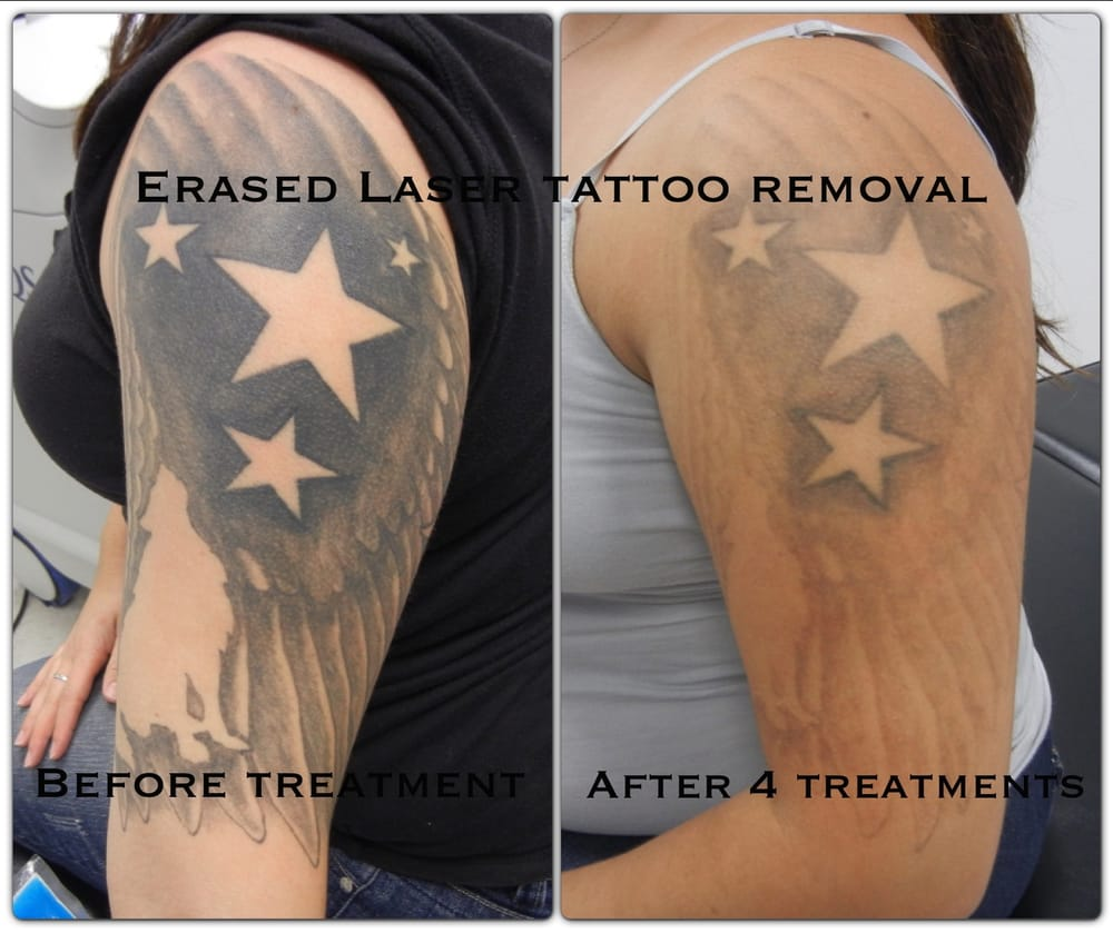 erased laser tattoo removal 63 photos 55 reviews