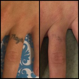 Photo Of Absolute Laser Tattoo Removal Hermosa Beach Ca United States