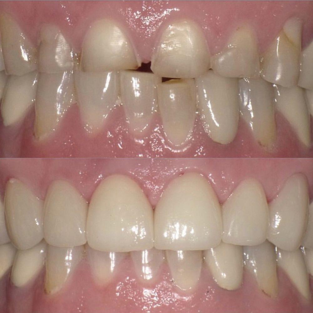 Culver Marina Dental Group: Pegah Ghassemi Bakhtiari, DDS